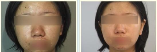 果酸换肤治疗青春痘,台中现代整形美容外科诊所
