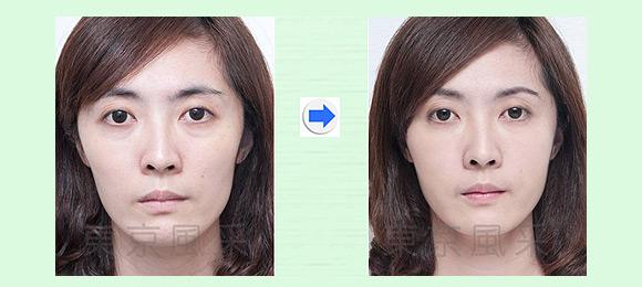 脸部祛皱文手法步骤图解